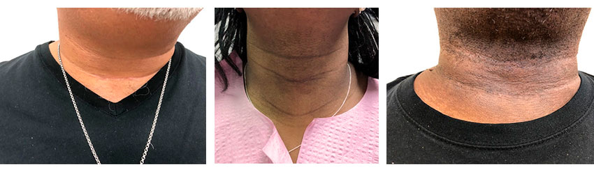 Patients' neck scars from thyroid surgery.